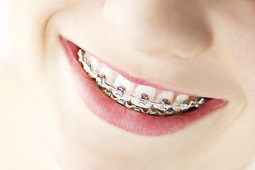 Dişler İçin Tel Tedavisi