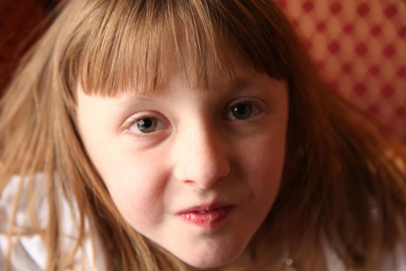 Kızlardaki Büyüme ve Gelişme Rahatsızlığı Turner Sendromu